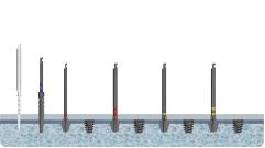Хирургический протокол инсталляции имплантата Barrel, двухэтапный мини-имплантат с внутренним шестигранником, при 3-4 типе кости (мягкая кость)