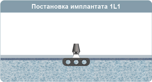 Хирургический протокол инсталляции имплантата 1L1, листовидного одноглавого имплантата, при 1-4 типе кости