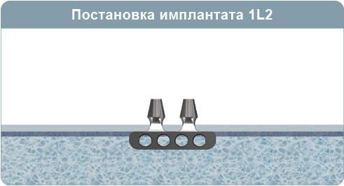 Хирургический протокол инсталляции имплантата 1L2, листовидного двуглавого имплантата, при 1-4 типе кости