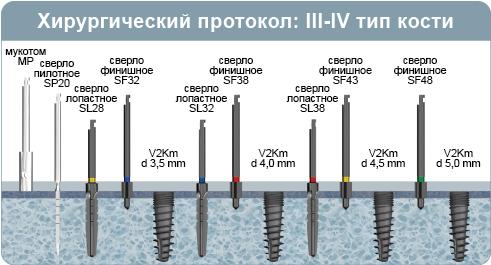 Хирургический протокол инсталляции имплантата V2Km, двухэтапный имплантат с внутренним шестигранником, при 3-4 типе кости (мягкая кость)