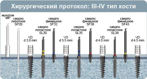 Хирургический протокол инсталляции имплантата VD, одноэтапный имплант с внутренним четырехгранником, при 3-4 типе кости (мягкая кость)