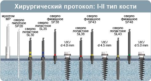 Хирургический протокол инсталляции имплантата VKV, имплантат разборной с наружным шестигранником, при 1-2 типе кости (плотная кость)