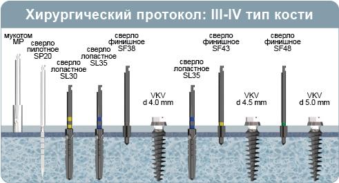 Хирургический протокол инсталляции имплантата VKV, имплантат разборной с наружным шестигранником, при 3-4 типе кости (мягкая кость)