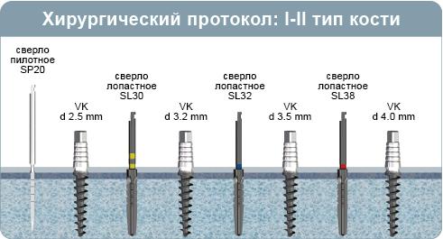 Хирургический протокол инсталляции имплантата VK, одноэтапный имплант с наружным четырехгранником, при 1-2 типе кости (плотная кость)