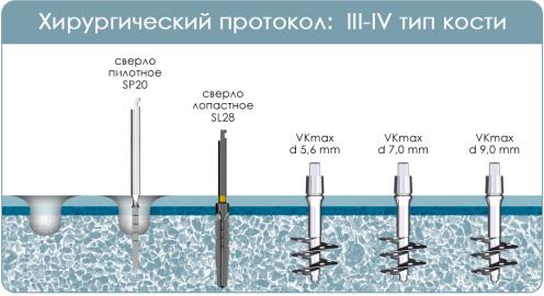 Иллюстрация хирургического протокола инсталляции имплантата VKmax, одноэтапный имплант с широкими лопастями, при 3-4 типе кости (мягкая кость)