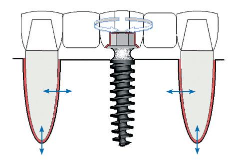 Червоним кольором виділено лінії створення мікрорухливості в незнімному протезі. На природніх зубах – це періодонт, в імплантаті – гвинтове з'єднання абатменту з зовнішньою шестикутною головкою. Стрілками показано напрям мікроруху
