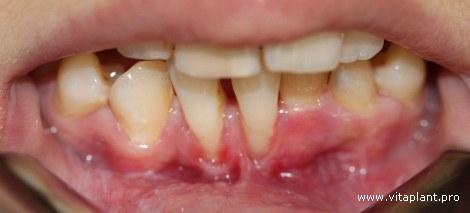 Пациентка Г., 38 лет. Рецессия десны III класса по Миллеру в области 3.1 × 4.1 зубов