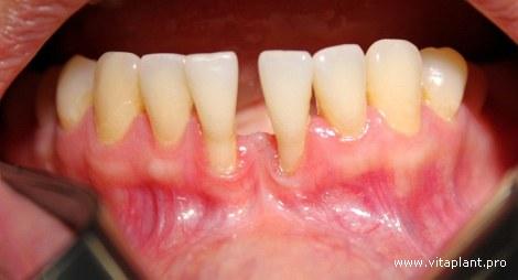 Пациентка В.,32 года. Рецессия десны IV класса по Миллеру в области зуба 3.1, 4.1