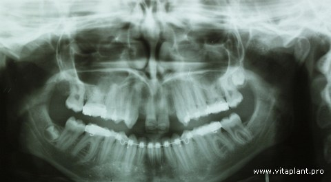 Исходная рентгенограмма клинического случая №3