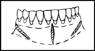 После проведения разрезов (центрального и 2 косых в области премоляров) формируют подслизистый туннель