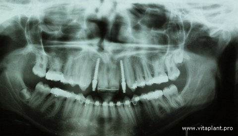 Рентгенограмма после установки однокомпонентных имплантатов VK 12, 22