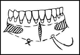 После перемещения комплекса подслизистых тканей и удаления резидуальных соединительнотканных и мышечных волокон слизистую оболочку фиксируют к надкостнице в глубине сформированного преддверия