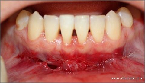 Центральный разрез ушит наглухо, в боковых участках оставлены незначительные раневые дефекты