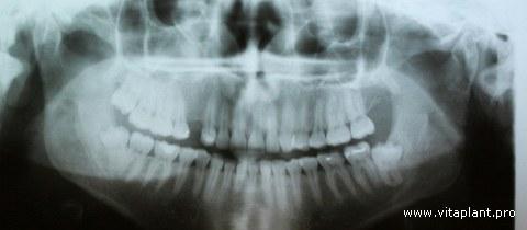 Рентгенограмма исходной ситуации клинического случая №5