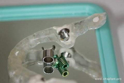 Хирургический шаблон с направляющими гильзами