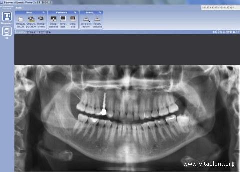 Рентген-контроль установки через 6 мес