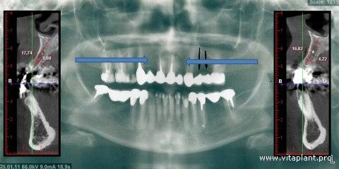 Рентгенограмма и компьютерная томограмма исходной ситуации клинического случая №4