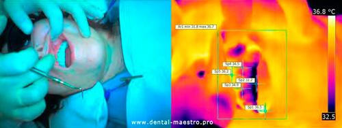 Зразок проведення термографічного дослідження в пацієнта П-ко, 37 років, карта обстеження 2/11
