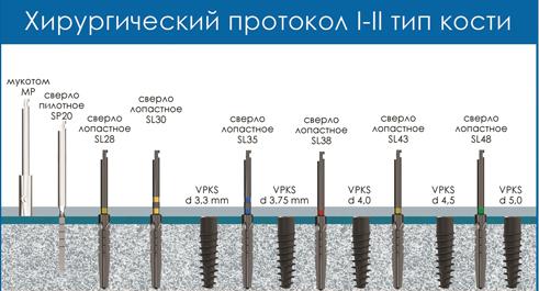 Иллюстрация хирургического протокола инсталляции имплантата VPKS, двухэтапный имплантат с внутренним шестигранником, при 1-2 типе кости (плотная кость)
